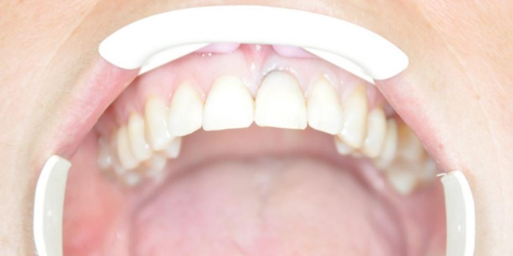 После установки имплантата и коронки Результат установки имплантата AnyRidge на место переднего зуба