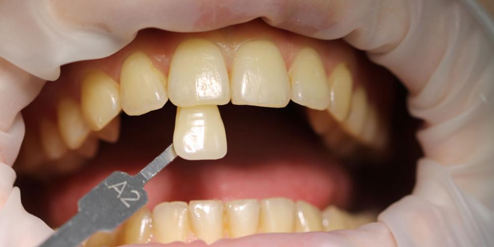 Цвет A2 Результат отбеливания зубов ZOOM