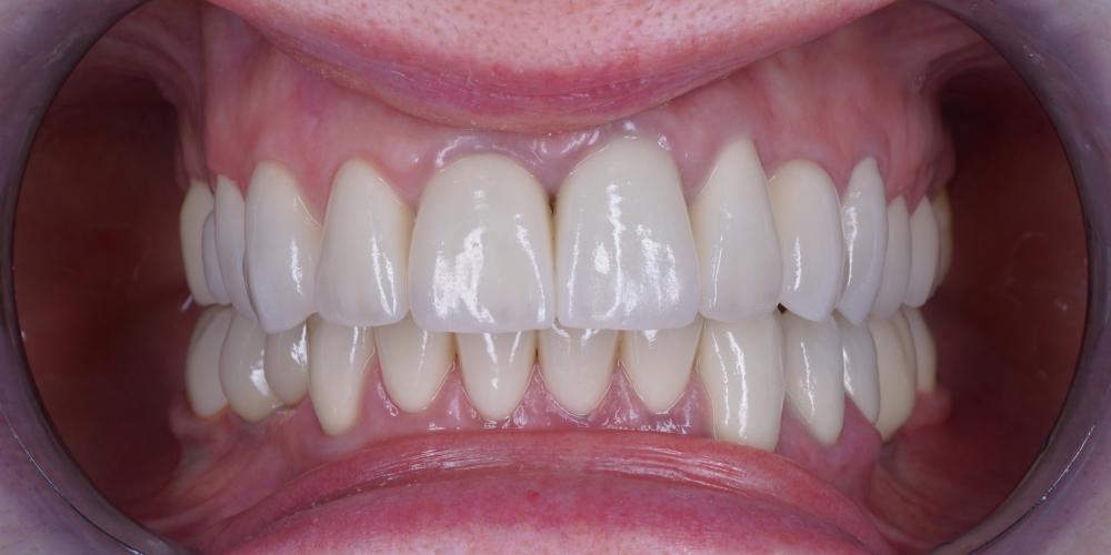 Изготовление 28 виниров, тотальная реабилитация зубочелюстной системы