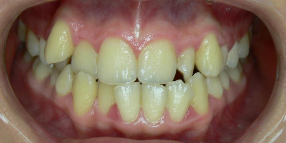 Жалобы на эстетику, сложности в чистке зубов