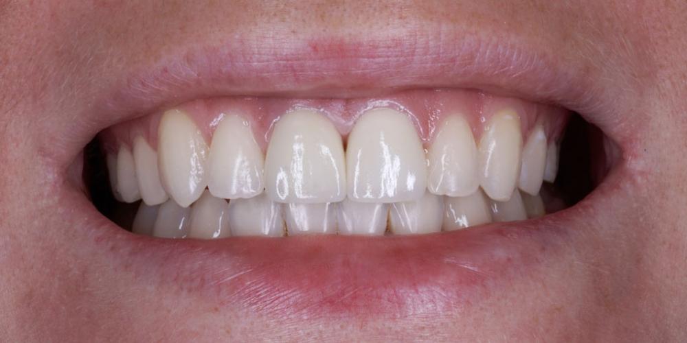 Изготовление виниров на 2 центральных зуба верхней челюсти