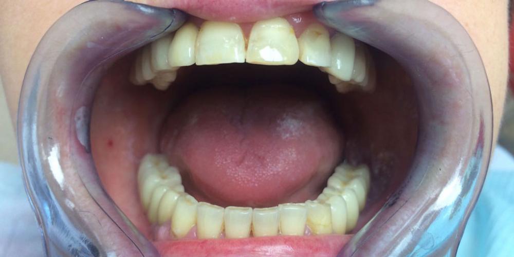 Восстановление зубов на верхней и нижней челюстях вживлением 11 имплантов