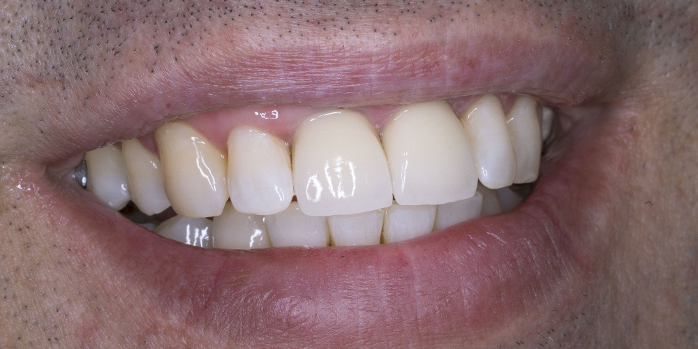 Протезирование двух зубов из диоксида циркония