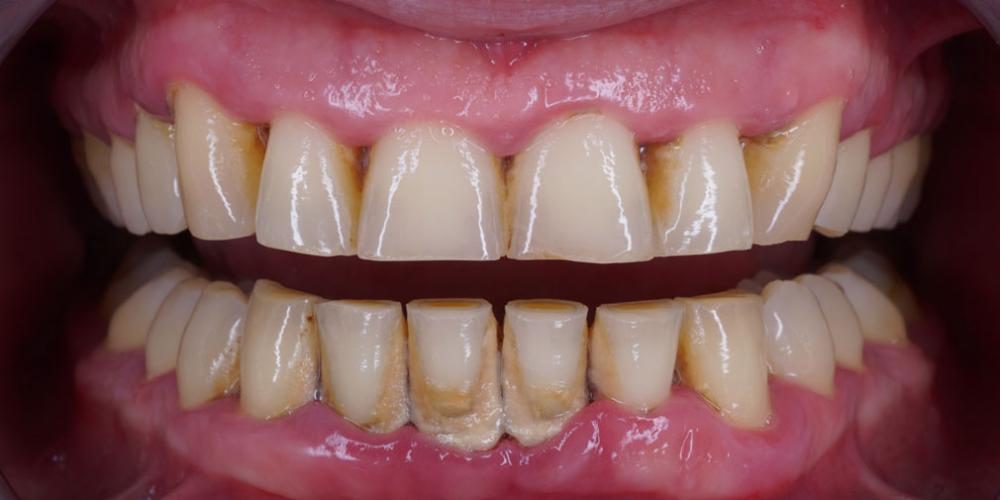 Профессиональна гигиена полости рта за 1 час