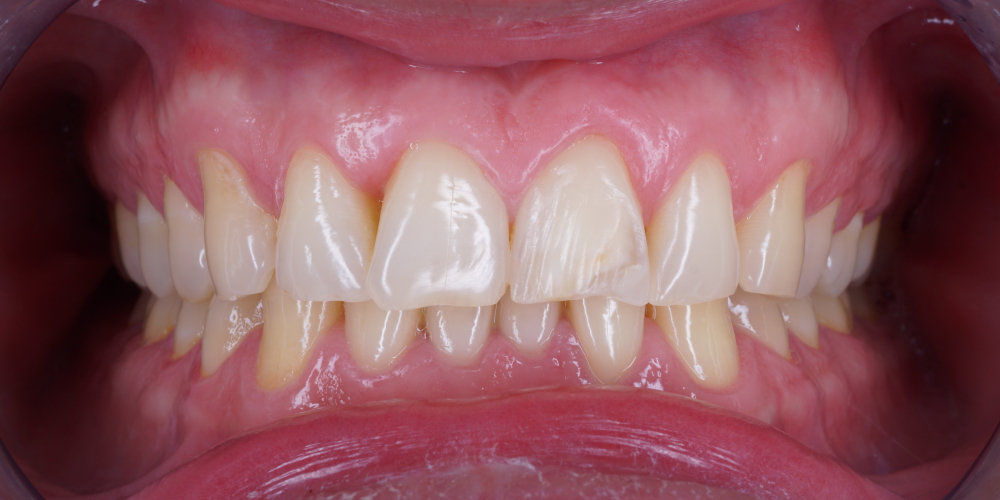 Изготовление винира на 1 центральный зуб верхней челюсти