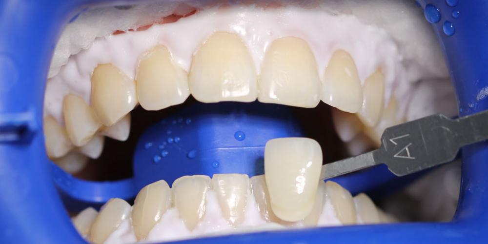 Цвет A1 Результат отбеливания зубов ZOOM