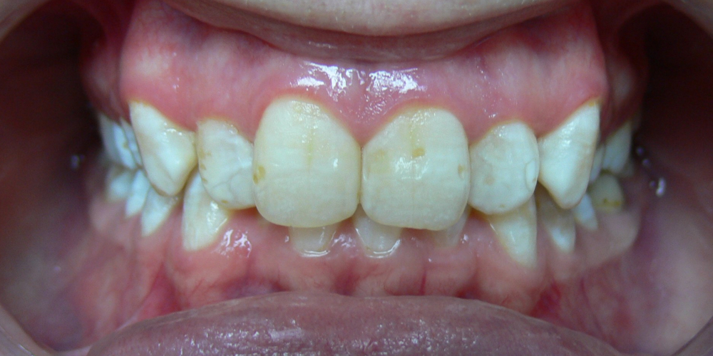 Жалобы на неровные зубы, отказ других ортодонтов ставить брекеты из-за особенности эмали (флюороз)