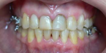 Жалобы на неровные зубы, подготовка к протезированию фото после лечения