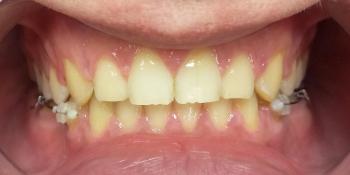 Жалобы на промежутки между зубами, не выпавшие молочные зубы на нижней челюсти фото после лечения