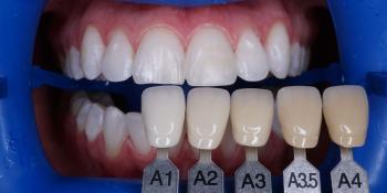 Результат профессионального отбеливания зубов системой ZOOM 4 фото после лечения
