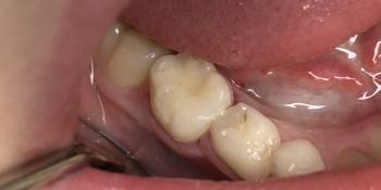 Средний кариес зуба 85 на контактной и жевательной поверхностях фото после лечения