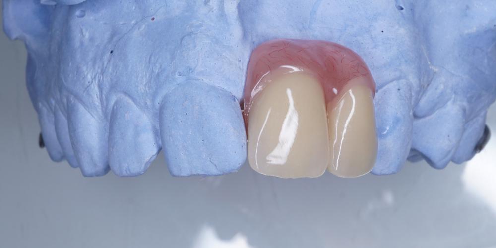 Изготовление косметического частичного съёмного протеза