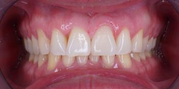 Изготовление винира на 1 центральный зуб верхней челюсти фото после лечения