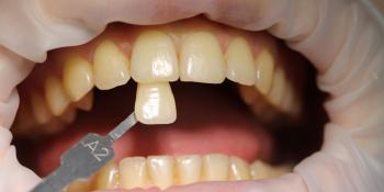 Результат отбеливания зубов ZOOM фото до лечения