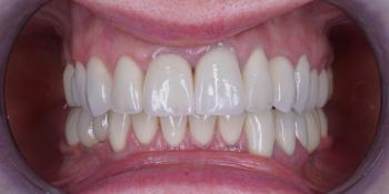 Изготовление 28 виниров, тотальная реабилитация зубочелюстной системы фото после лечения