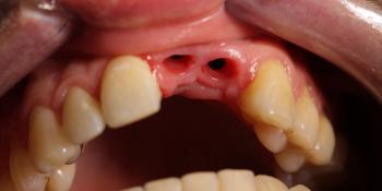 Результат имплантации и протезирования двух передних зубов фото до лечения