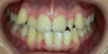 Жалобы на эстетику, сложности в чистке зубов фото до лечения