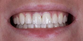 Изготовление виниров на 2 центральных зуба верхней челюсти фото после лечения