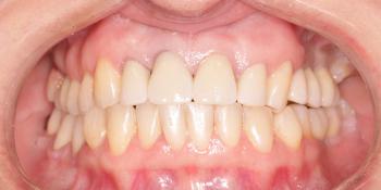 Восстановление жевательных зубов имплантацией ICX и протезированием фото после лечения