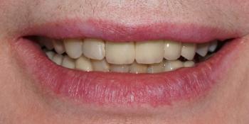 Изготовление 28 виниров, тотальная реабилитация зубочелюстной системы фото до лечения