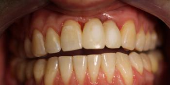 Результат имплантации и протезирования двух передних зубов фото после лечения