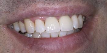 Протезирование двух зубов из диоксида циркония фото после лечения