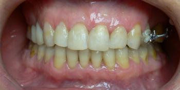 Жалобы на эстетику подготовка к протезированию фото после лечения