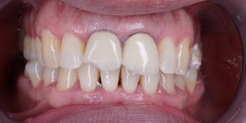 Протезирование двух зубов из диоксида циркония фото до лечения