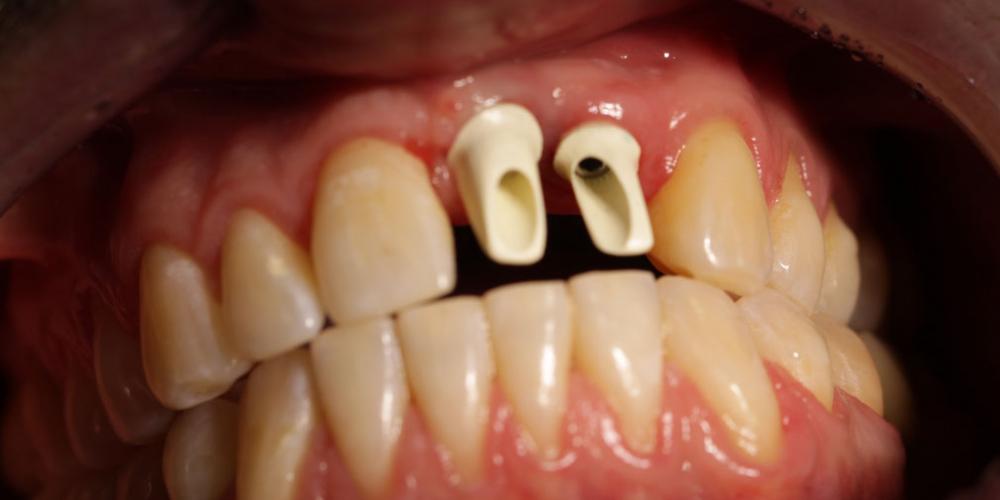 Результат имплантации и протезирования двух передних зубов