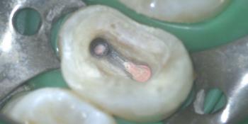 Щадящее удаление всех разрушенных тканей и перепломбировка корневых каналов фото после лечения