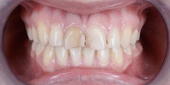 Изготовление виниров на 2 центральных зуба верхней челюсти фото до лечения