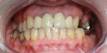 Восстановление жевательных зубов имплантацией ICX и протезированием фото до лечения