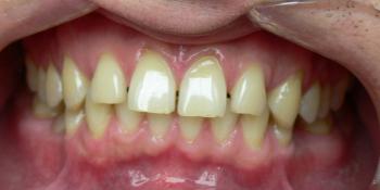 Жалобы на промежутки между зубами, не выпавшие молочные зубы на нижней челюсти фото до лечения