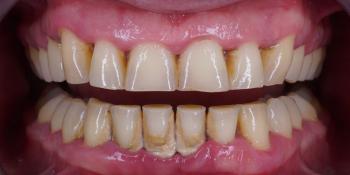 Профессиональна гигиена полости рта за 1 час фото до лечения