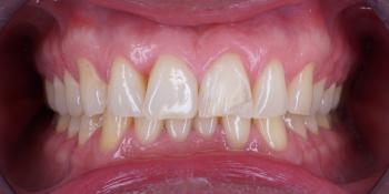 Изготовление винира на 1 центральный зуб верхней челюсти фото до лечения