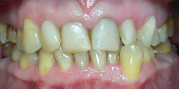 Жалобы на неровные зубы, подготовка к протезированию фото до лечения