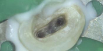 Нахождение корневых каналов с использованием микроскопа фото после лечения