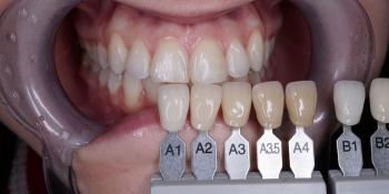 Результат профессионального отбеливания зубов системой ZOOM 4 фото до лечения