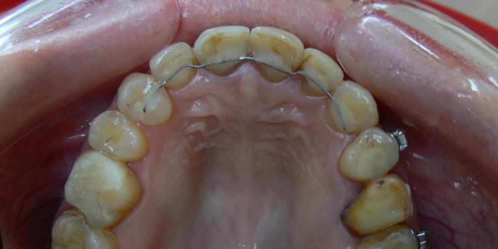 Жалобы на неровные зубы, подготовка к протезированию