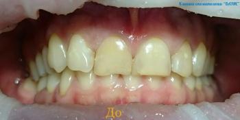 Результат преобразования улыбки керамическими винирами фото до лечения
