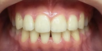 Жалобы на эстетику, сложности в чистке зубов фото после лечения