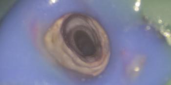 Распломбировка канала от цемента, с использованием дентального микроскопа фото после лечения