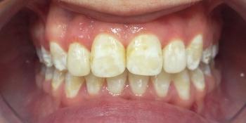Жалобы на неровные зубы, отказ других ортодонтов ставить брекеты из-за особенности эмали (флюороз) фото после лечения