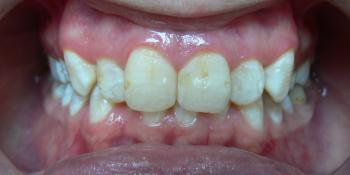 Жалобы на неровные зубы, отказ других ортодонтов ставить брекеты из-за особенности эмали (флюороз) фото до лечения