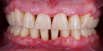 Профессиональна гигиена полости рта за 1 час фото после лечения